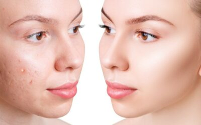 Best Acne Treatment in Dallas: Celebrate the Gift of Clear Skin This Holiday Season