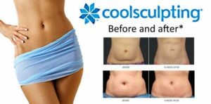 Coolsculpting questions - before and after