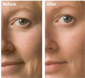 Maras-supercharged-oxygen-facial-results